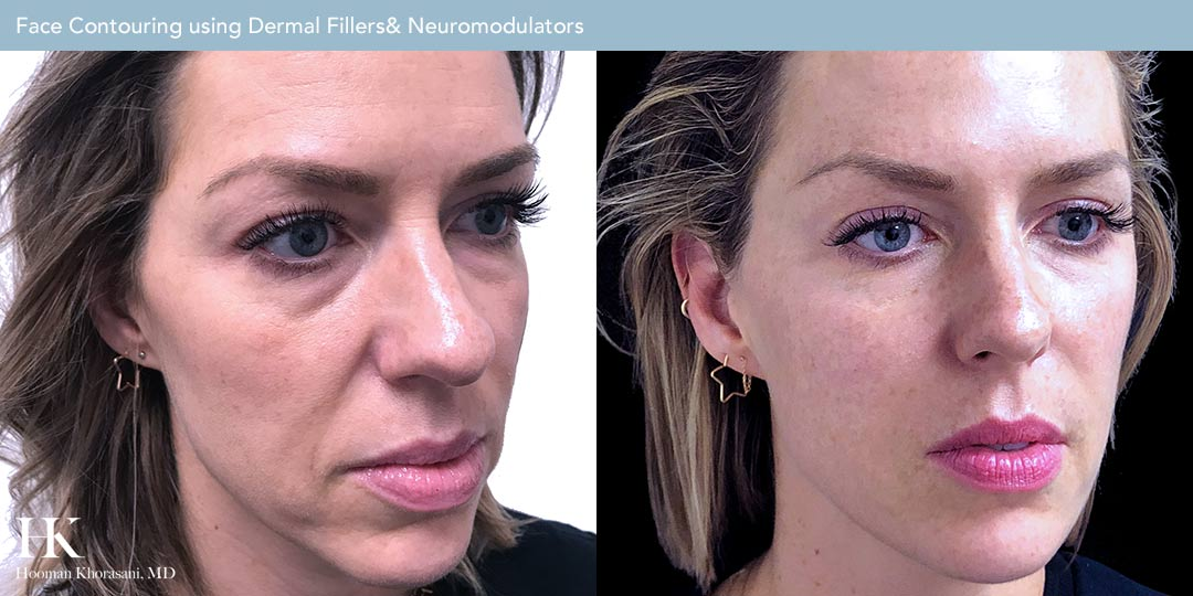 Face Contouring by Dr. Hooman Khorasani
