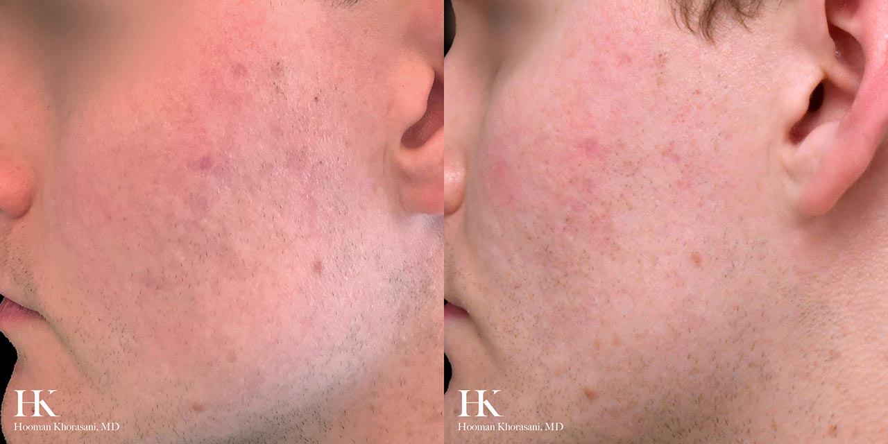 Acne Treatment & Scar Revision by Dr. Hooman Khorasani