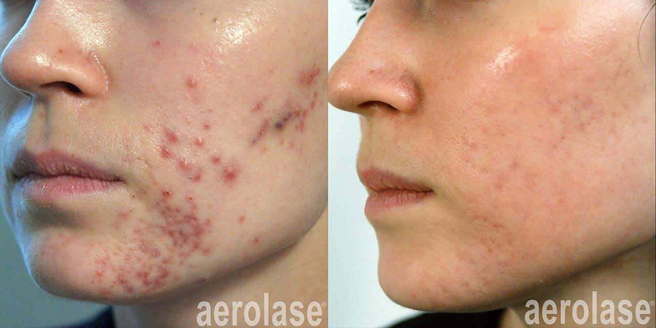 Acne Treatment & Scar Revision   Dr. Hooman Khorasani