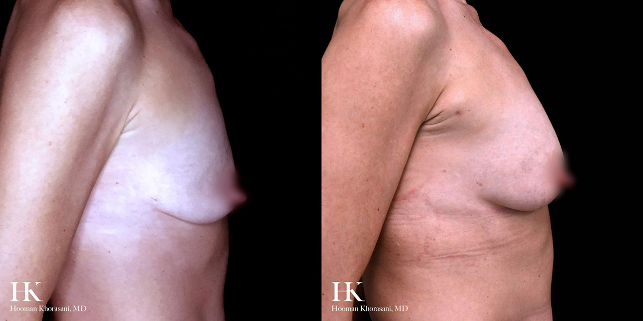 Breast Enhancement by Dr. Hooman Khorasani