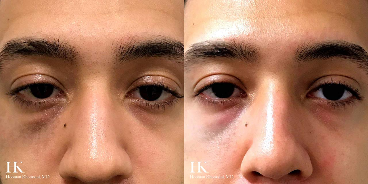 Brown Spot & Discoloration Removal by Dr. Hooman Khorasani