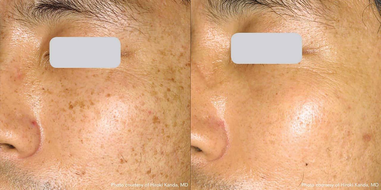 Brown Spot & Discoloration Removal | Dr. Hooman Khorasani