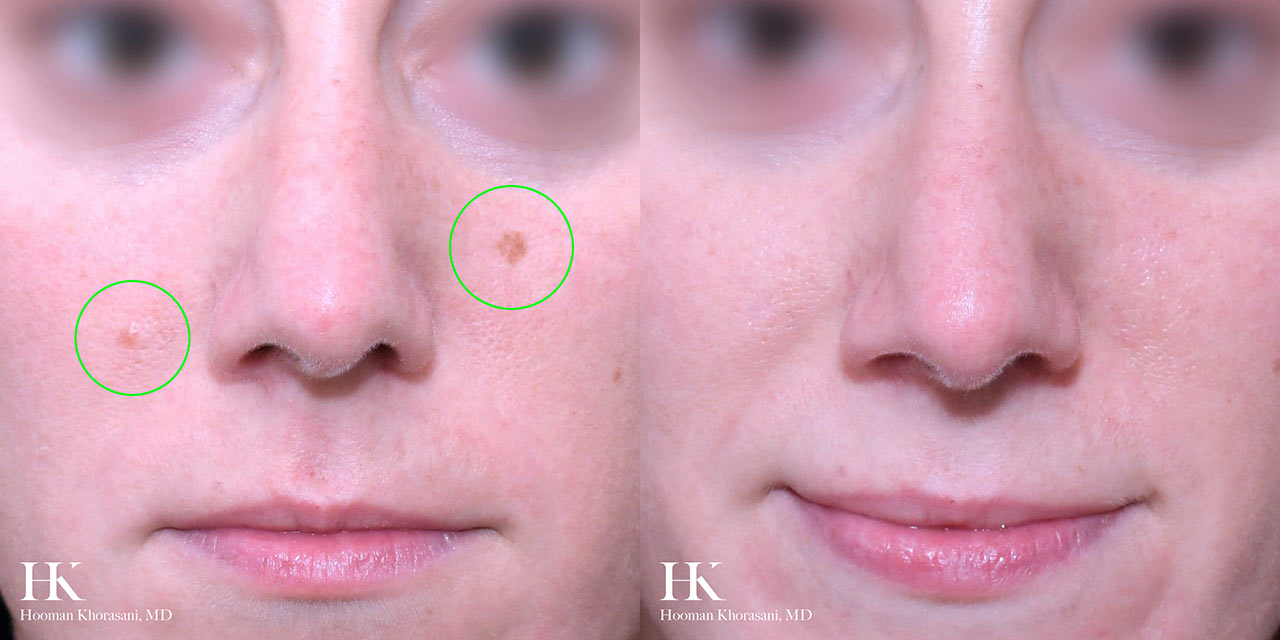 Cosmetic Mole Removal by Dr. Hooman Khorasani