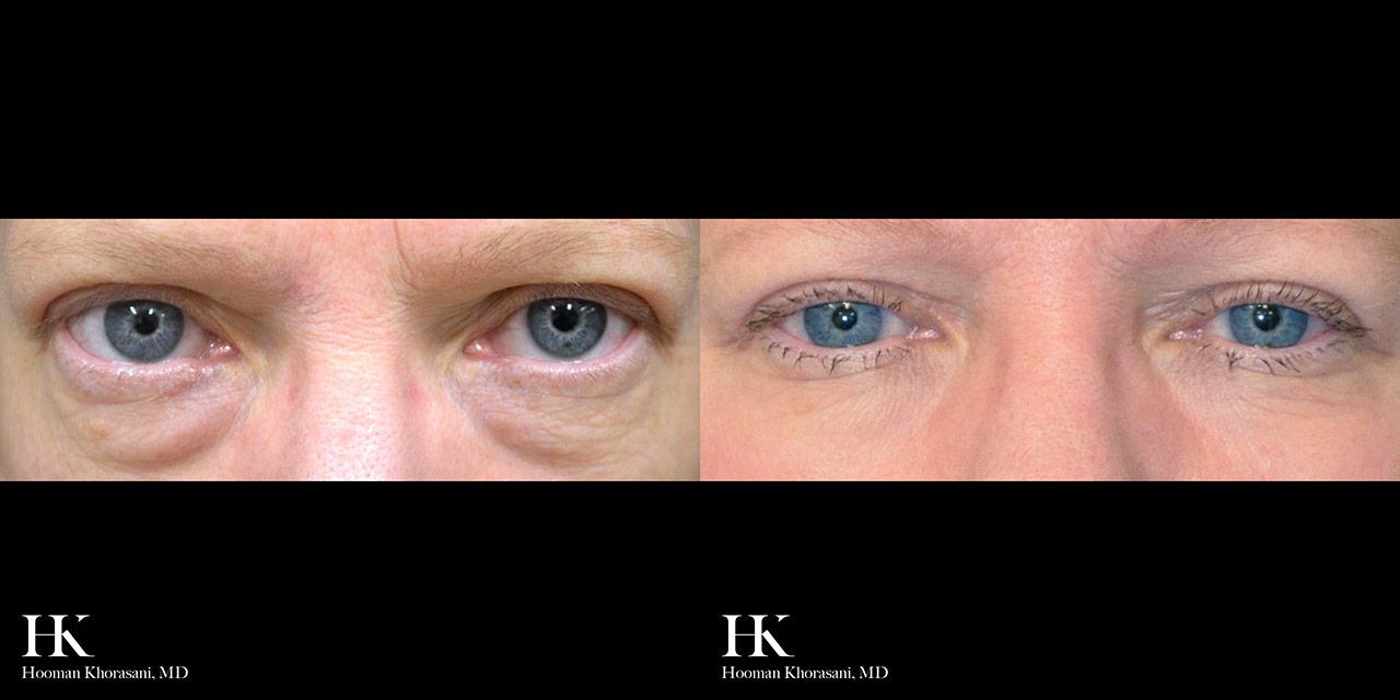 Eyelid Surgery Lower Blepharoplasty by Dr. Hooman Khorasani