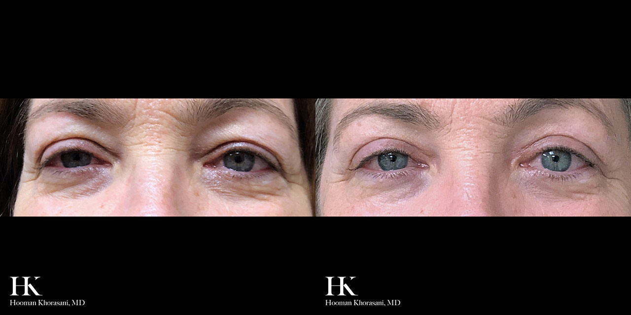 Eyelid Surgery Upper Blepharoplasty by Dr. Hooman Khorasani