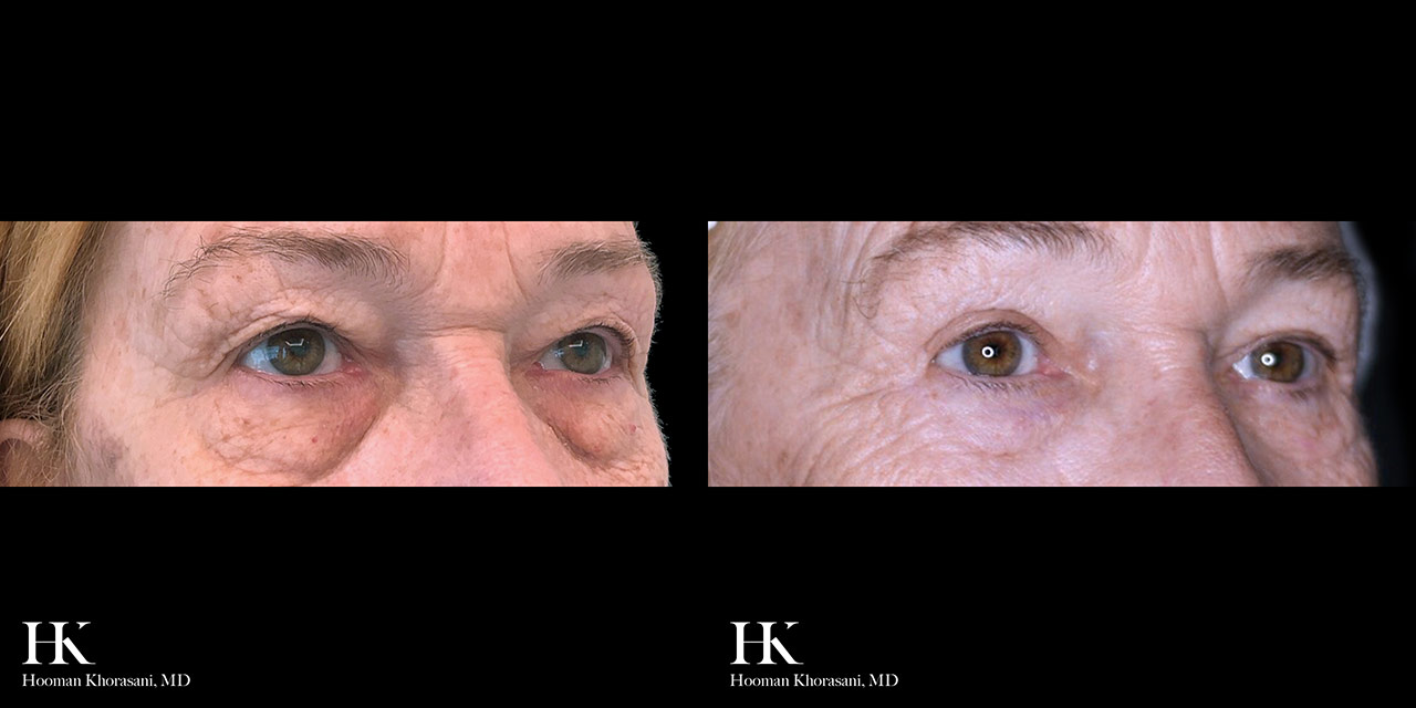 Eyelid Surgery Upper & Lower Blepharoplasty by Dr. Hooman Khorasani