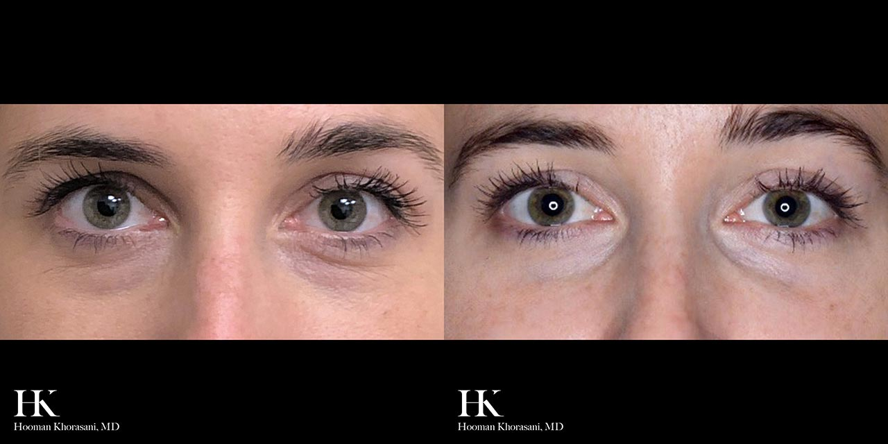 Face Contouring with Fillers by Dr. Hooman Khorasani