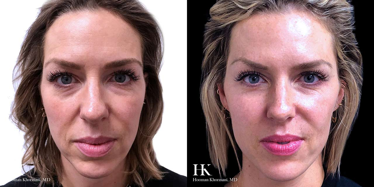 Facial Rejuvenation & Conturing with Facial Fillers by Dr. Hooman Khorasani