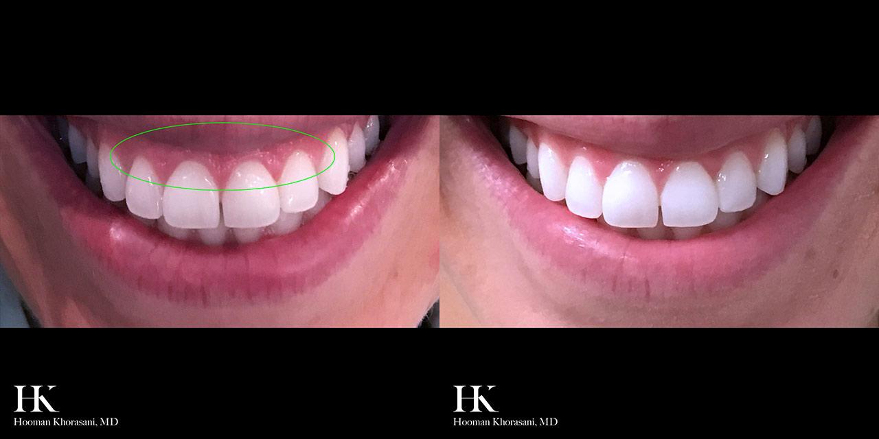 Lip Augmentation Gummy Smile Reduction by Dr. Hooman Khorasani