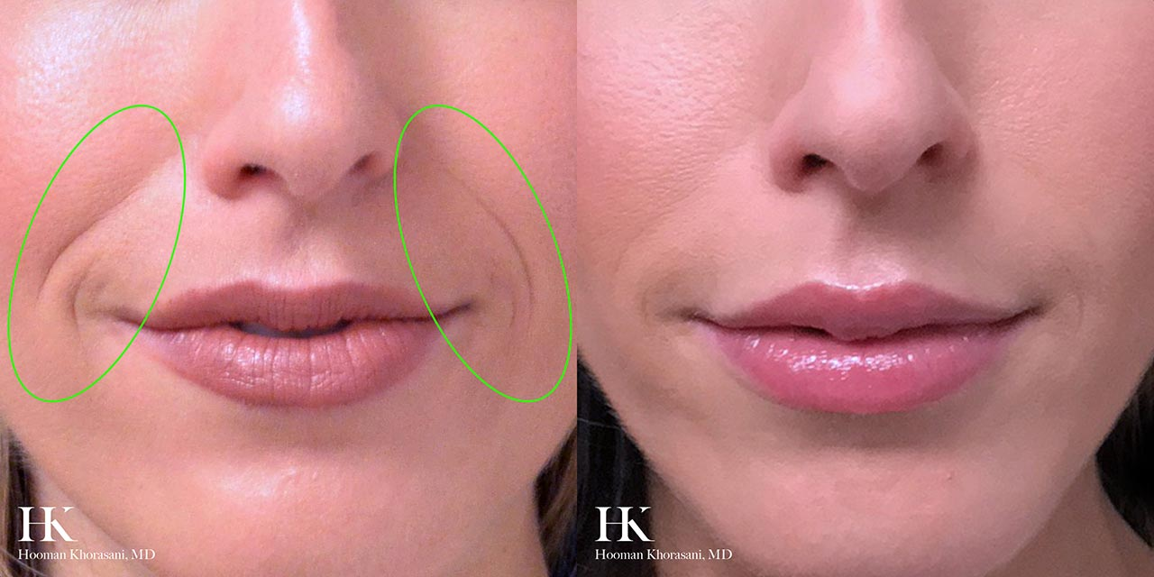 Nasolabial Fold Contouring with Facial Fillers by Dr. Hooman Khorasani