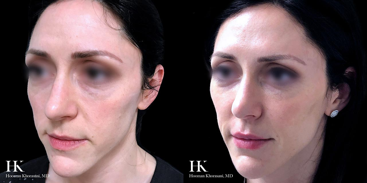 Face Contouring with  Facial Fillers by Dr. Hooman Khorasani