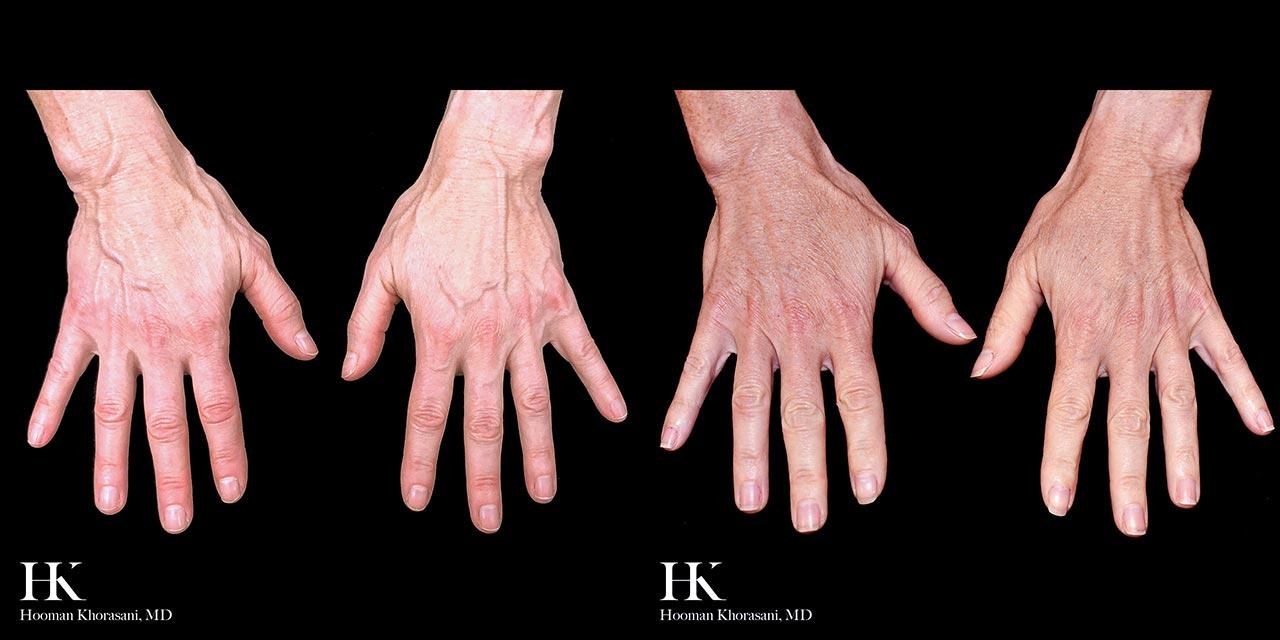 Hand Restoration Using Dermal Fillers by Dr. Hooman Khorasani