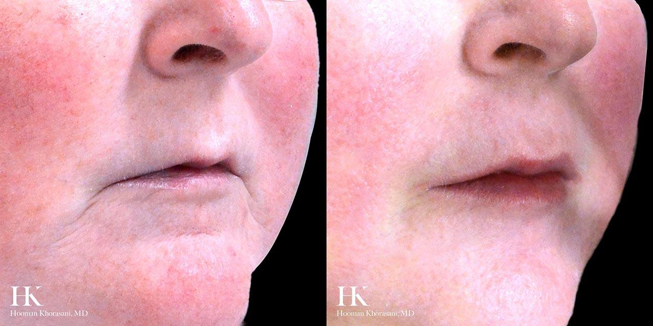 Lip Augmentation using Dermal Filler by Dr. Hooman Khorasani