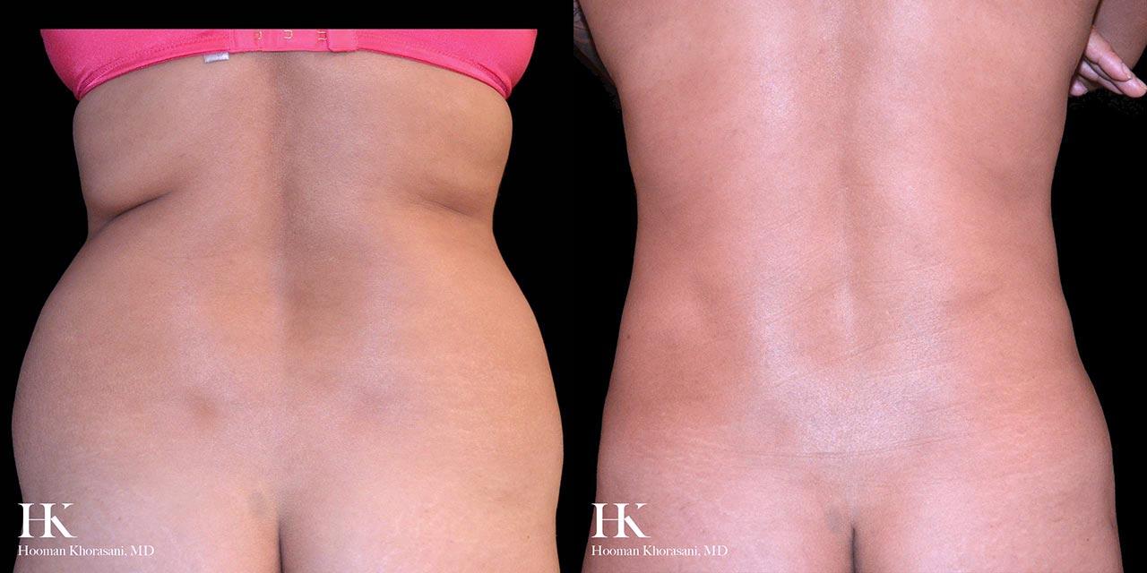 Liposuction of the Abdomen by Dr. Hooman Khorasani