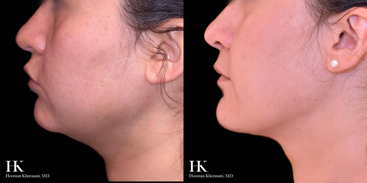 Liposuction of the Neck by Dr. Hooman Khorasani