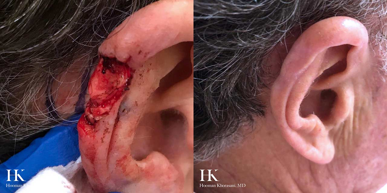 Mohs Micrographic Surgery & Reconstruction of the Ear by Dr. Hooman Khorasani