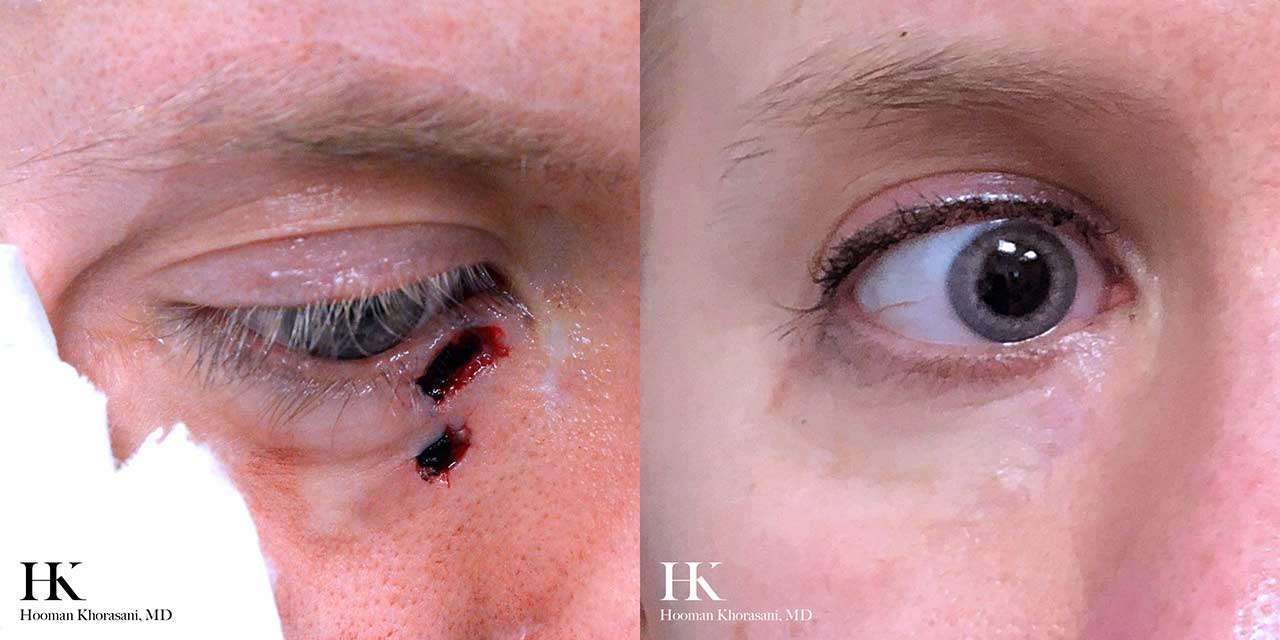Mohs Micrographic Surgery & Reconstruction of the Eye by Dr. Hooman Khorasani