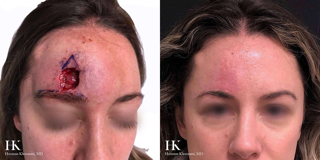 Mohs Micrographic Surgery & Reconstruction of the Forehead by Dr. Hooman Khorasani