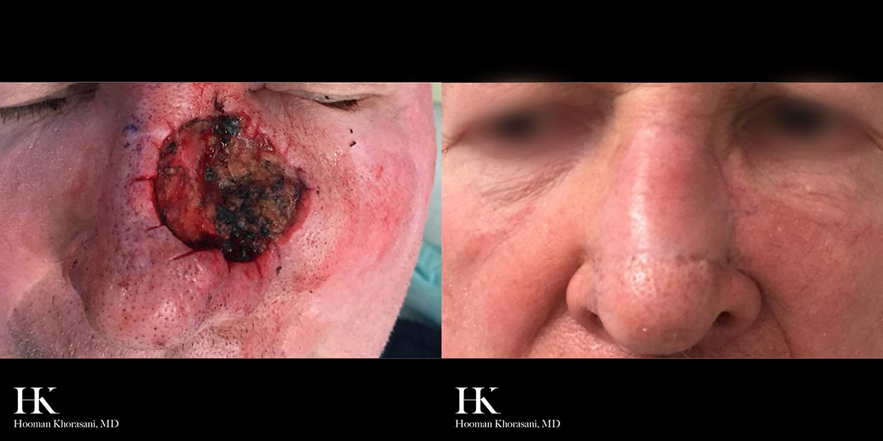 Mohs Micrographic Surgery & Reconstruction of the Nose by Dr. Hooman Khorasani