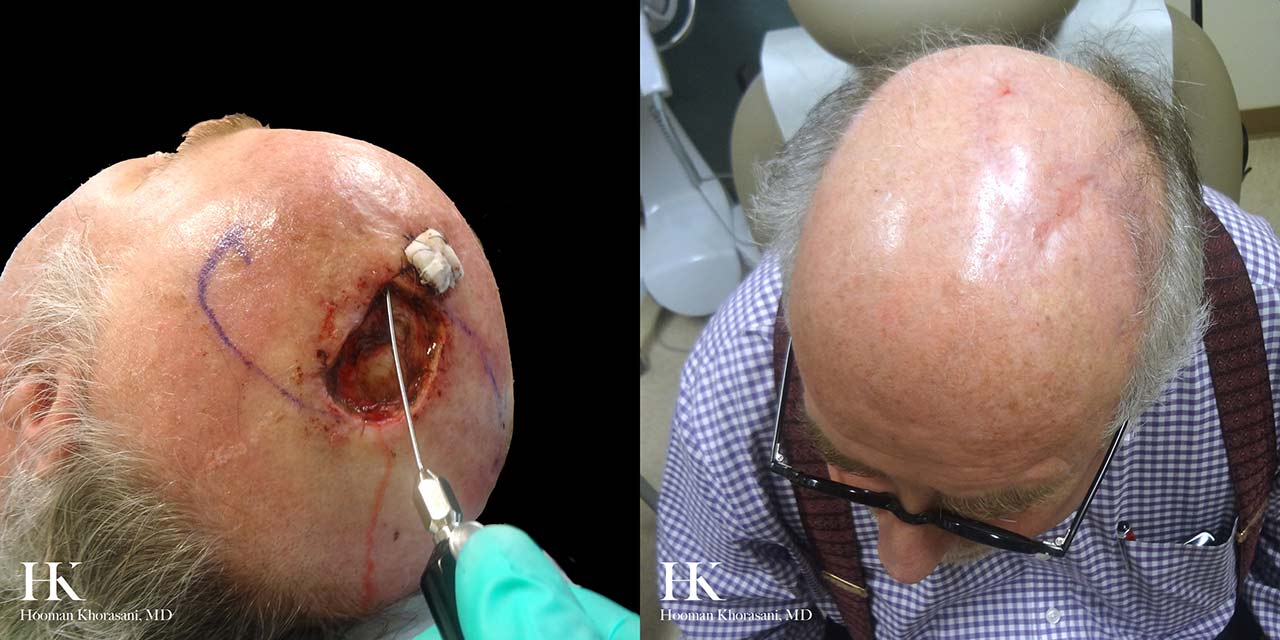 Mohs Micrographic Surgery & Reconstruction of the Scalp by Dr. Hooman Khorasani