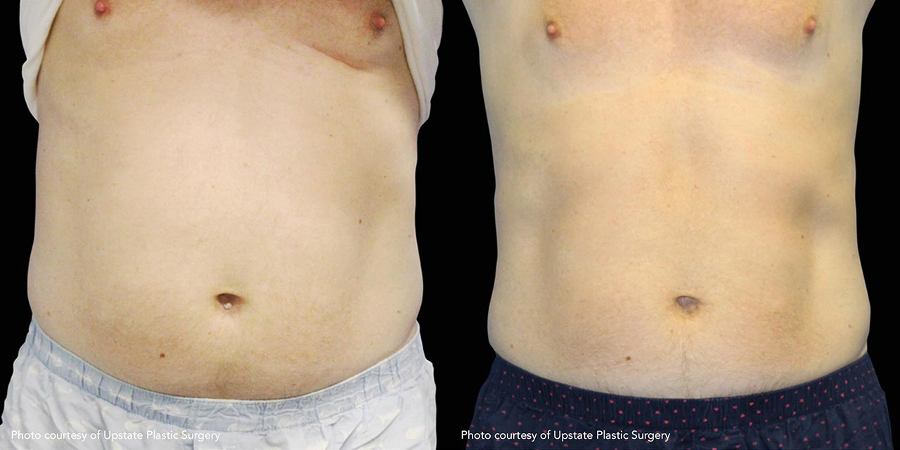 Muscle Sculpting using MSculpt offered by Dr. Hooman Khorasani
