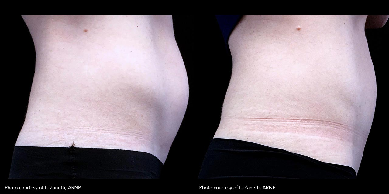 Muscle Sculpting using Trusculpt Flex offered by Dr. Hooman Khorasani