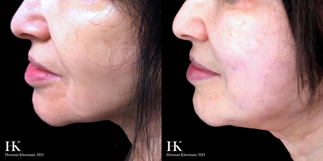 Face & Neck Lift using Threadlift by Dr. Hooman Khorasani
