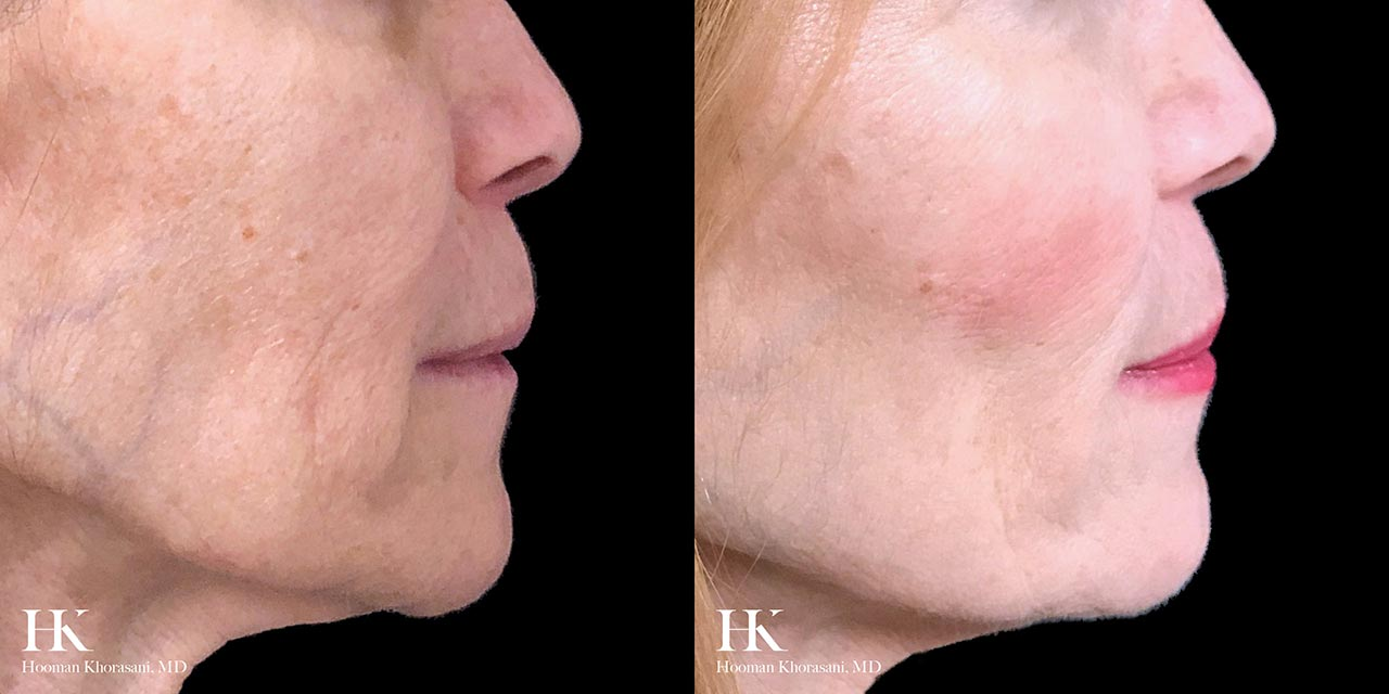 Face & Neck Lift using Threadlift by Dr. Hooman Khorasani