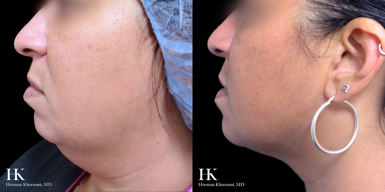 Non-Surgical Fat Reduction Using Kybella by Dr. Hooman Khorasani
