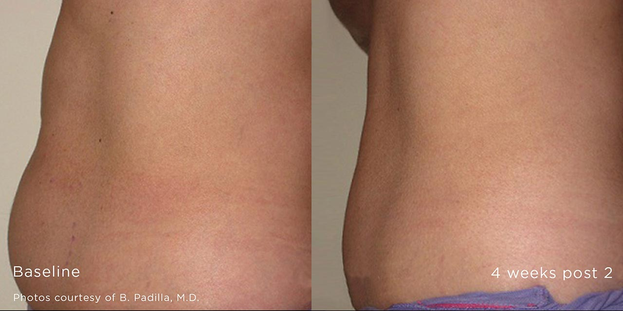 Non-Surgical Fat Reduction Using TruSculpt iD by Dr. Hooman Khorasani