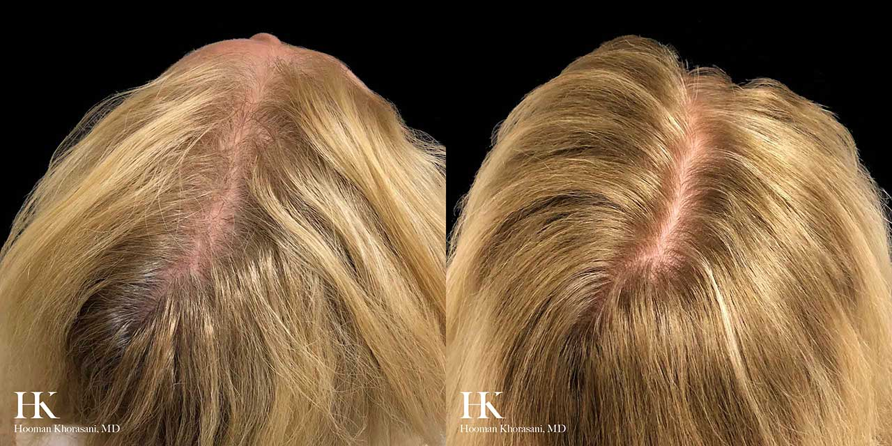 Non-Surgical Hair Restoration using PRP by Dr. Hooman Khorasani