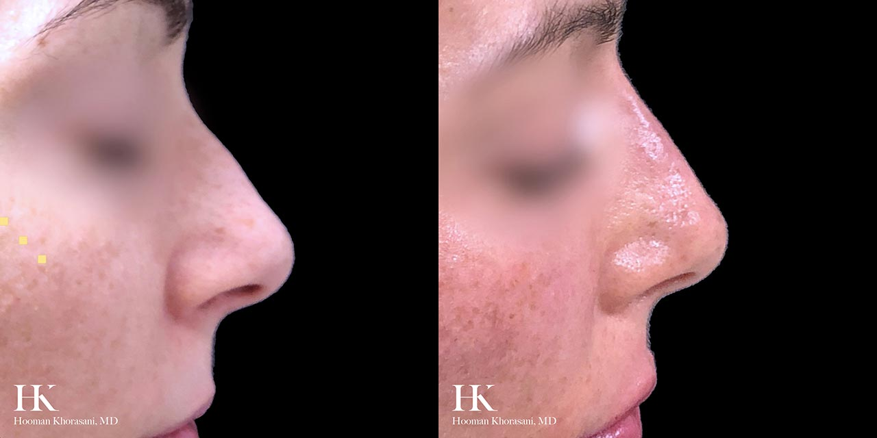 Nose Reshaping (Non-Surgical Rhinoplasty) using Dermal Fillers by Dr. Hooman Khorasani