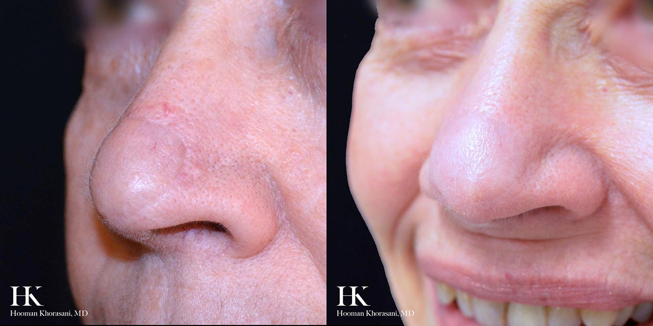 Scar Revision using Dermabrassion and DeepFX by Dr. Hooman Khorasani