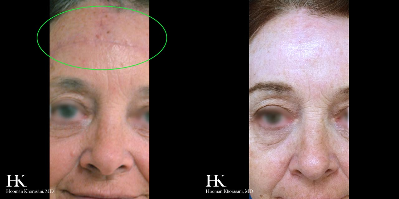 Scar Revision using Dermabrasion and DeepFX by Dr. Hooman Khorasani