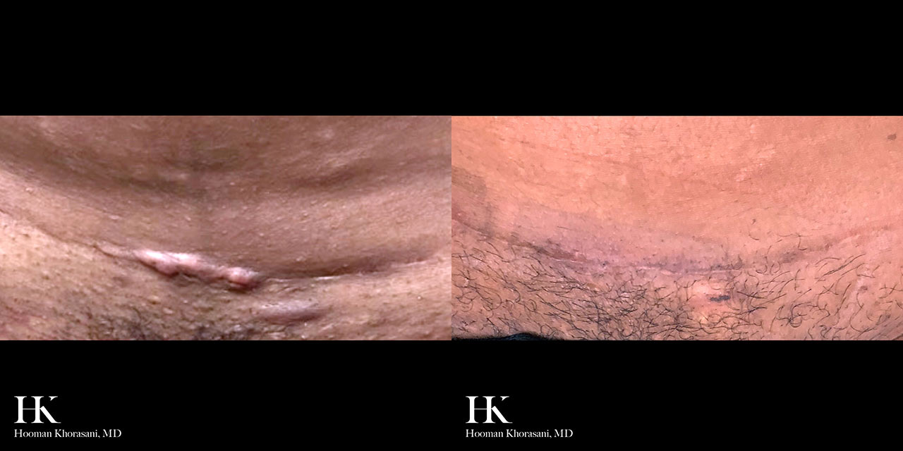 Scar Revision using Keloid Excision by Dr. Hooman Khorasani
