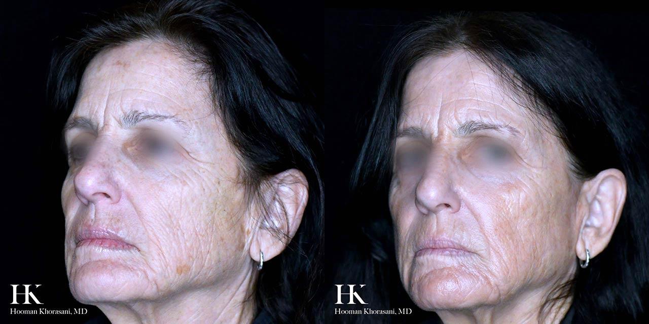 Skin Tightening using JPlasma by Dr. Hooman Khorasani
