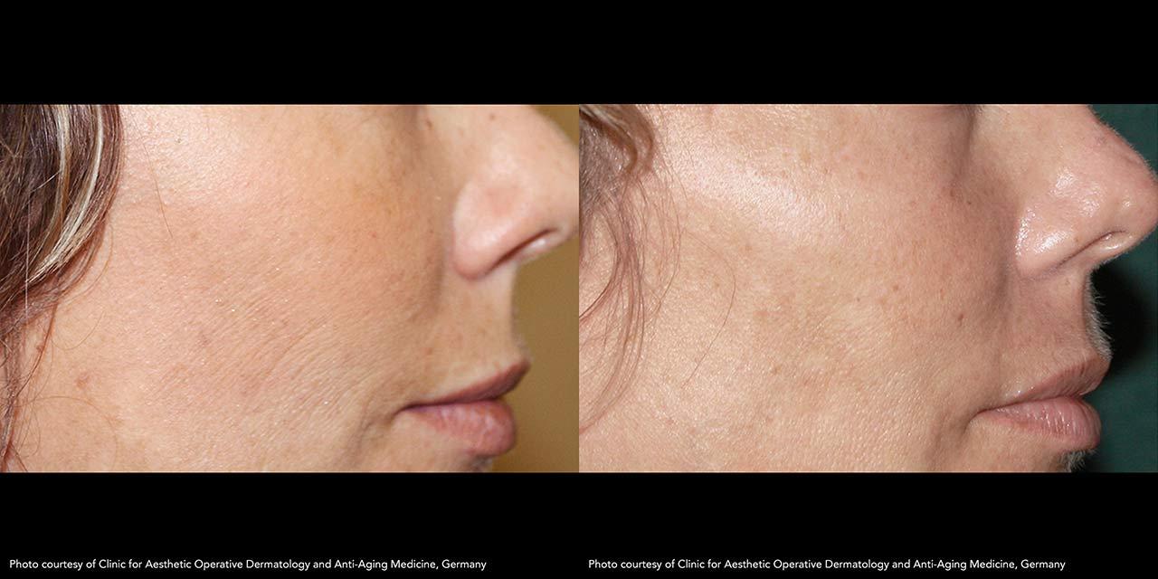Skin Tightening using RF Microneedling | Dr. Hooman Khorasani