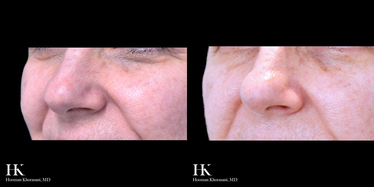 Skin Tightening using RF Microneedling by Dr. Hooman Khorasani