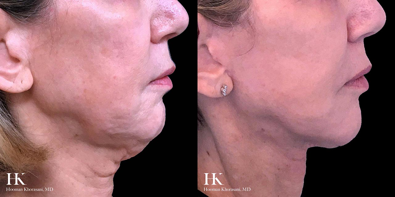 Surgical Face and Neck Lift by Dr. Hooman Khorasani