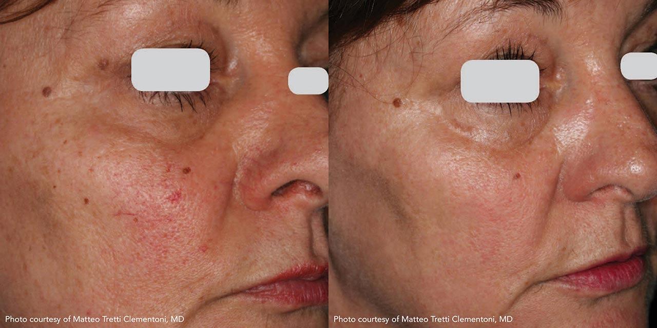 Vascular Lasers for Redness & Veins using IPL | Dr. Hooman Khorasani