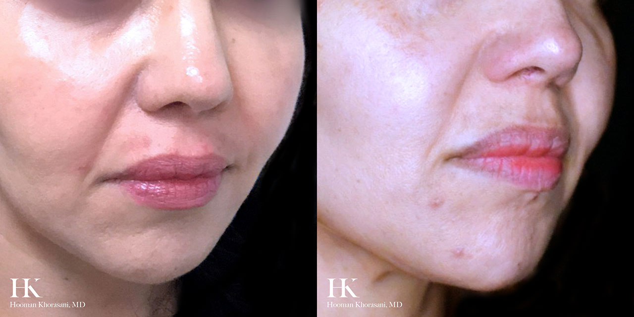 Vascular Lasers for Redness & Veins using Vbeam by Dr. Hooman Khorasani