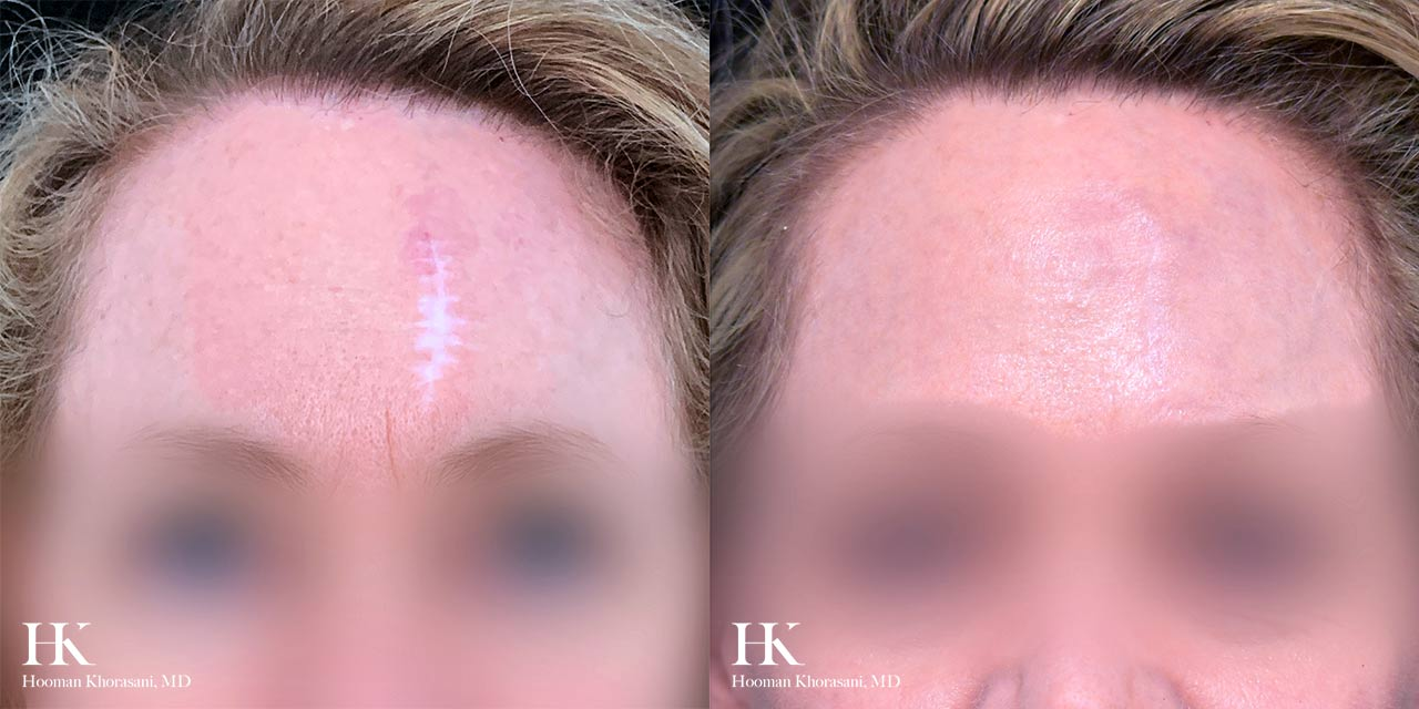 Scar Revision Using Dermabrasion by Dr. Hooman Khorasani