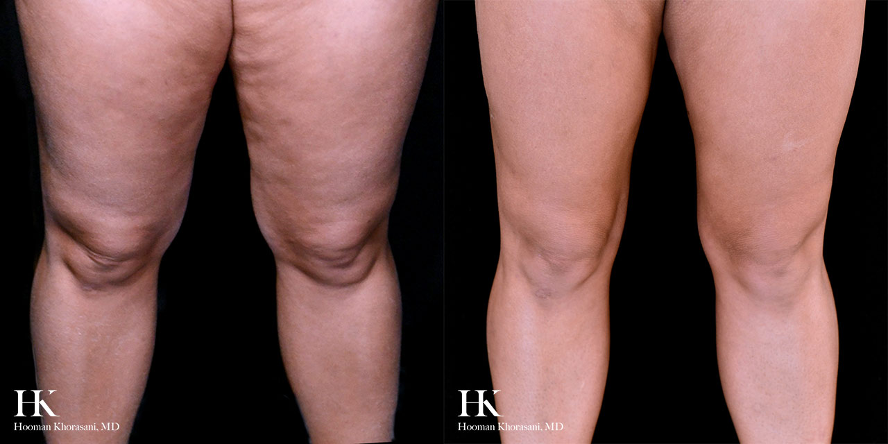 Liposuction and Subdermal skin tightening of the Thighs by Dr. Hooman Khorasani