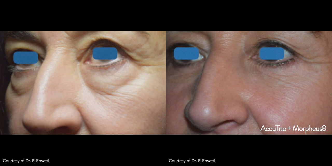 Non-Surgical Facelift Using AccuTite by Dr. Hooman Khorasani