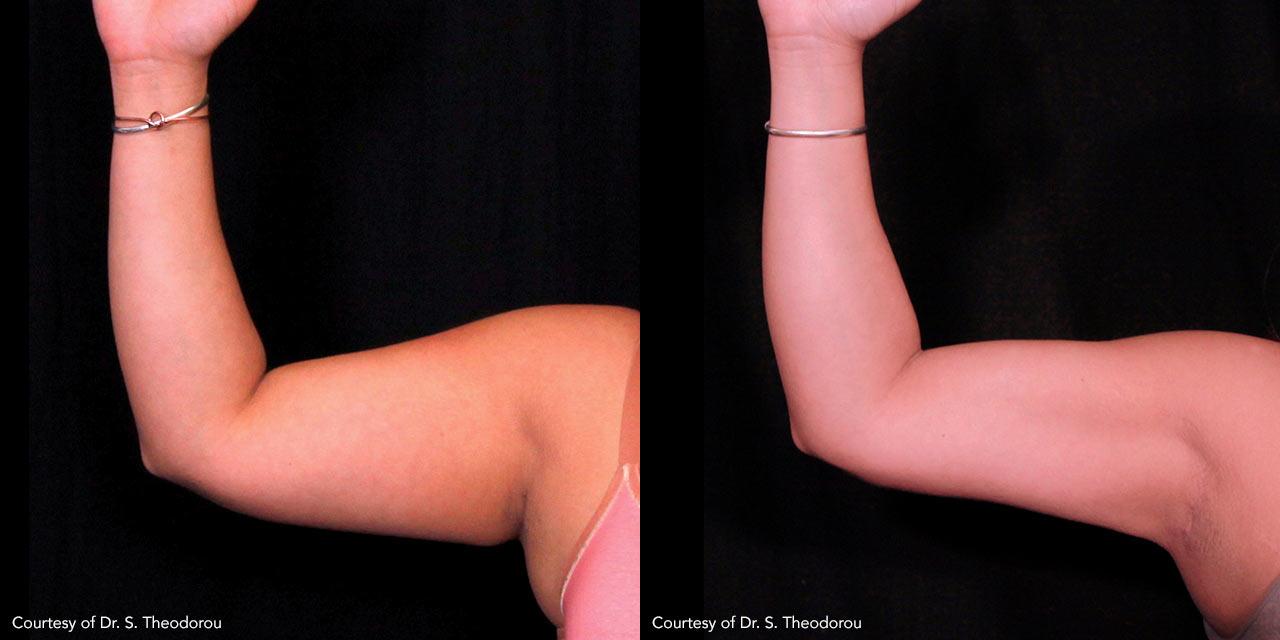 Subdermal Skin Tightening & Body Contouring using BodyTite offer by Dr. Hooman Khorasani