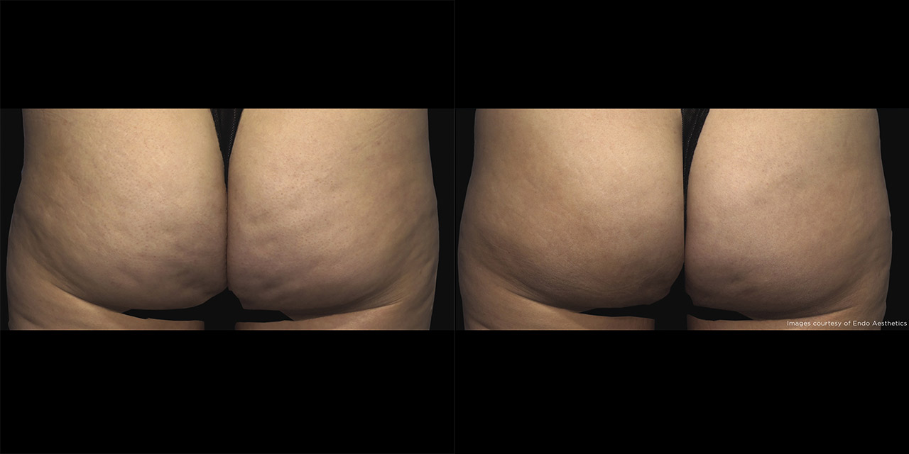Cellulite Reduction using Qwo offered by Dr. Hooman Khorasani