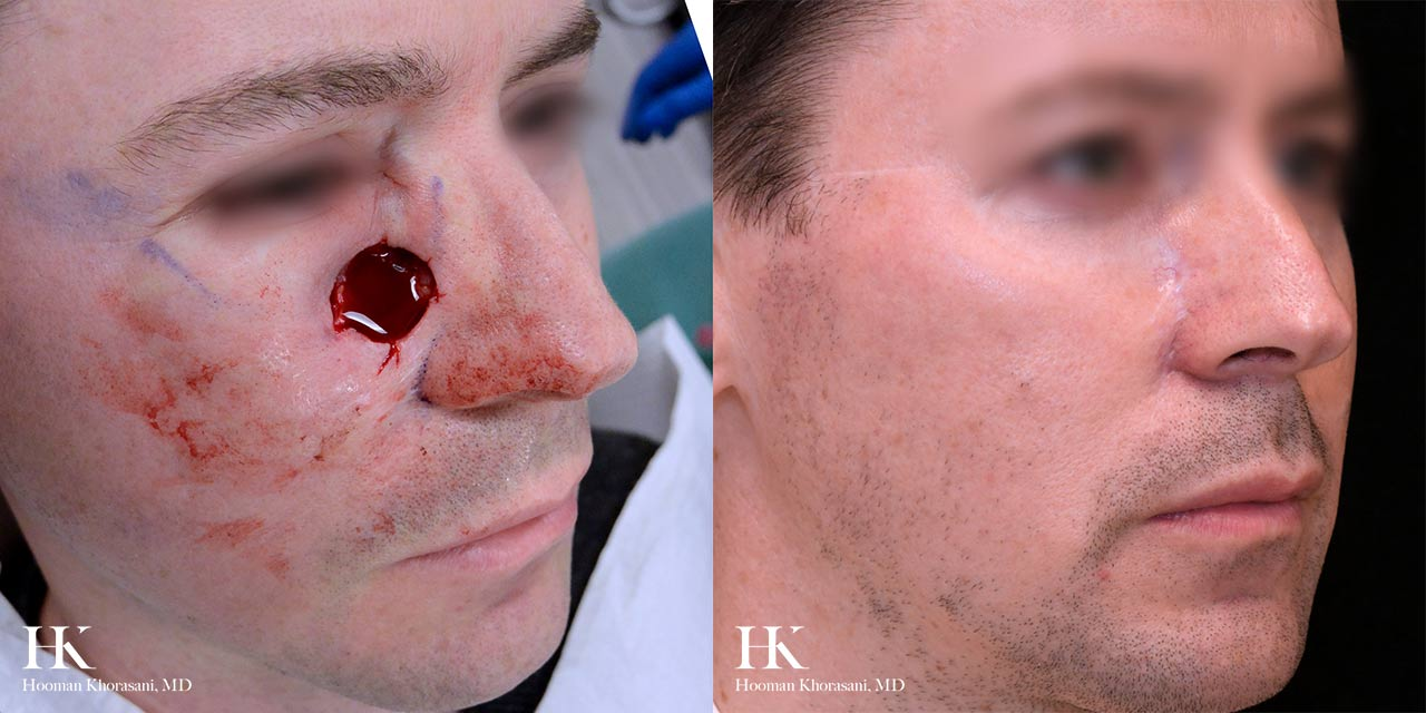 Mohs Micrographic Surgery & Reconstruction of the Cheek by Dr. Hooman Khorasani