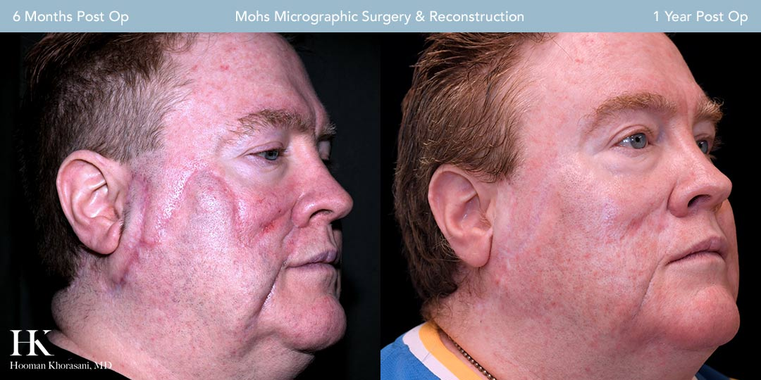 Mohs Micrographic Surgery & Reconstruction by Dr. Hooman Khorasani