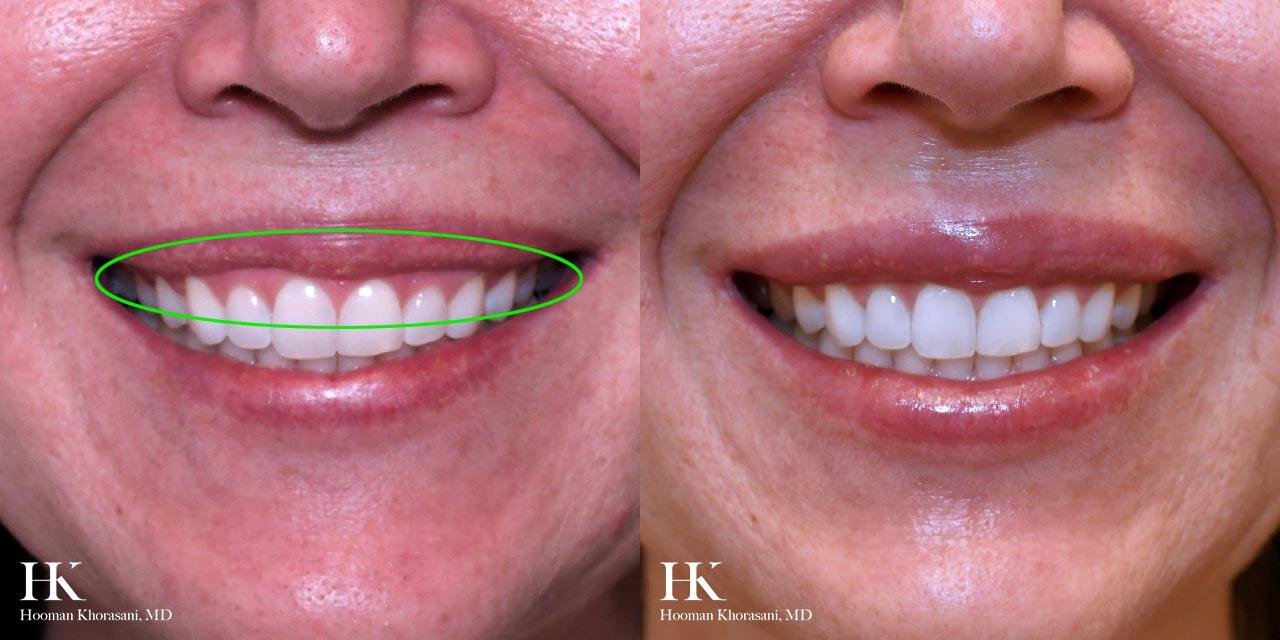 Lip Augmentation for Gummy Smile Correction by Dr. Hooman Khorasani