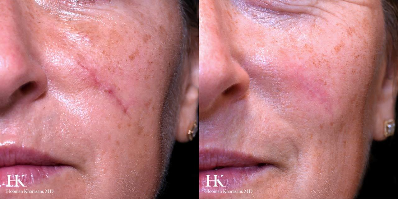 Scar Revision Using Dermabrasion by Dr. Hooman Khorasani